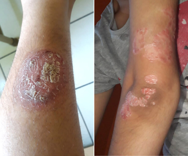This Is How Psoriasis Changed This 23YO Girl's Perspective Towards Life!