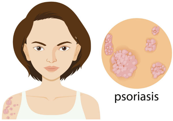 This Is How Psoriasis Changed This 23YO Girl's Perspective Towards Life! (5)